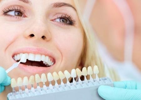Blanchiment dentaire à Javea - Blanchir les dents á Zen Smile