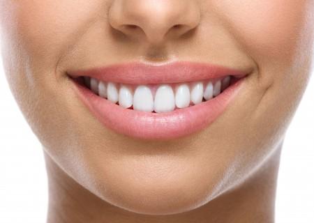 Facettes dentaires à Javea - Votre dentiste Zen Smile - soins dentaire