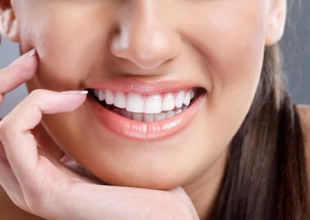 Inlays et Onlay de porcelaine - Dentiste à Javea - ceramique