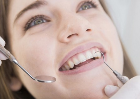 Les Composites blancs - dentiste à Javea - Restauration dentaire - plombage blanc